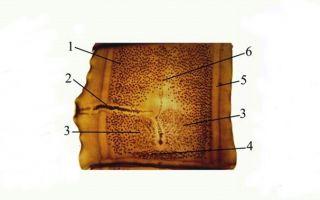 Отличительные признаки строения гермафродитной проглоттиды
