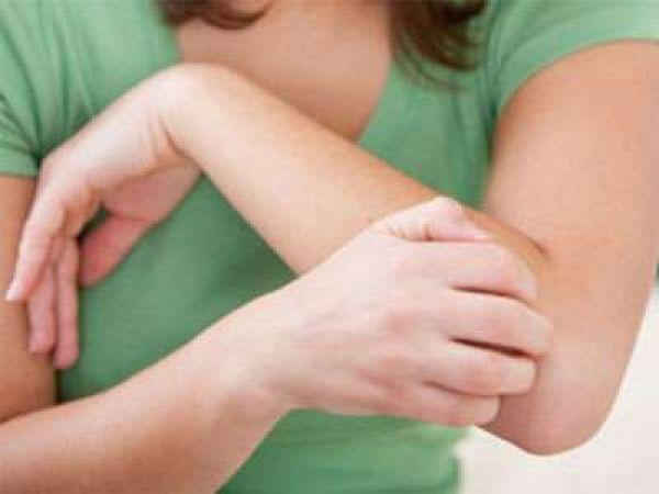 Какие могут быть высыпания на коже при глистах