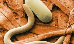 Профилактика, симптомы и лечение энтеробиоза (остриц)