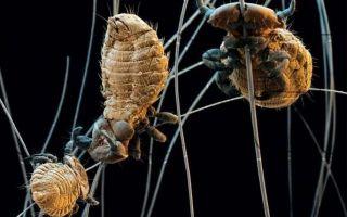 Классификация видов эктопаразитов человека, симптомы и профилактика инвазии