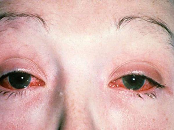 Симптомы и эффективное лечение хламидиоза глаз