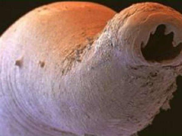 Что это такое анкилостомидоз и его симптомы у человека