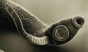 Пути передачи токсоплазмоза, как им можно заразиться