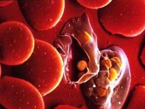 Виды и лечение протозойных инфекций у человека