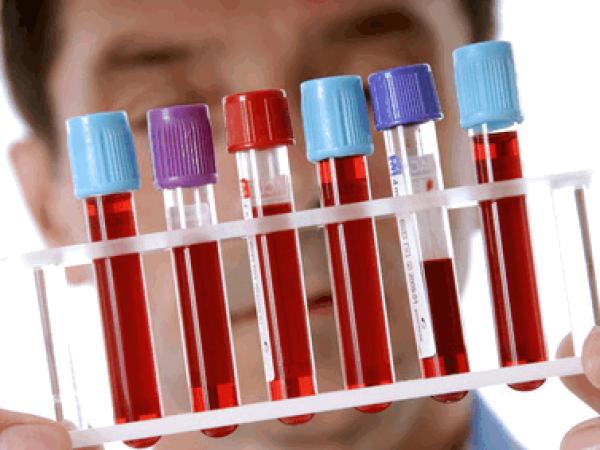 Какой анализ крови нужно сдать на наличие в организме паразитов