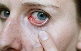 Симптомы, диагностика и лечение гнатостомоза у человека