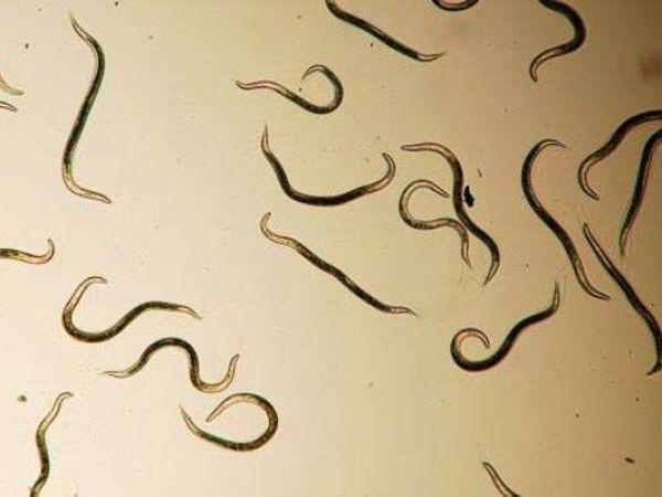Какими видами глистов можно заразиться человеку