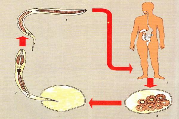 паразиты в венах человека симптомы