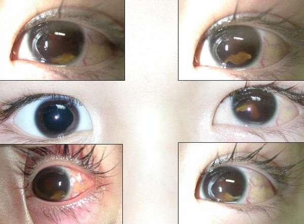 много глаз