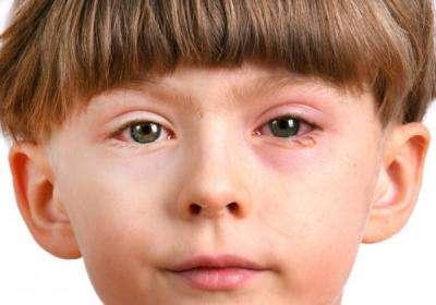 кожа возле органов зрения