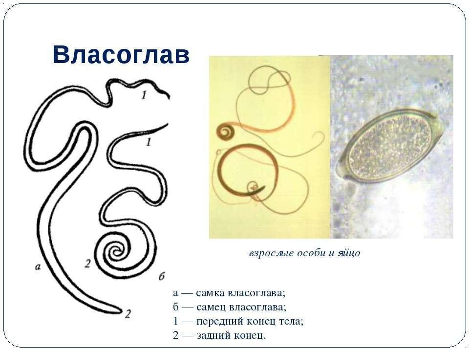 власоглавы паразиты