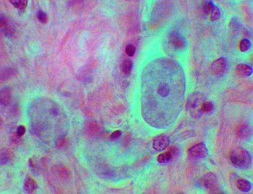 болезни проотозойные