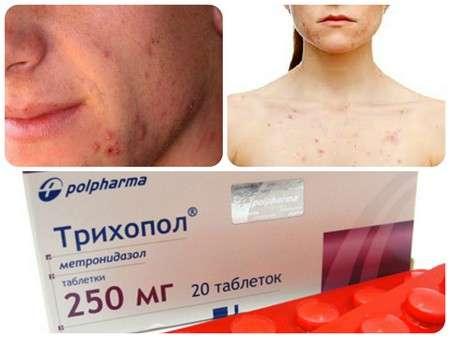 Демодекс: таблетки для человека, виды и самые эффективные