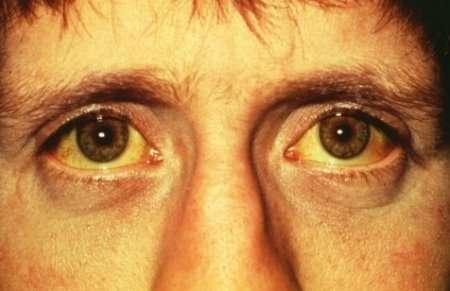 желтуха болезнь