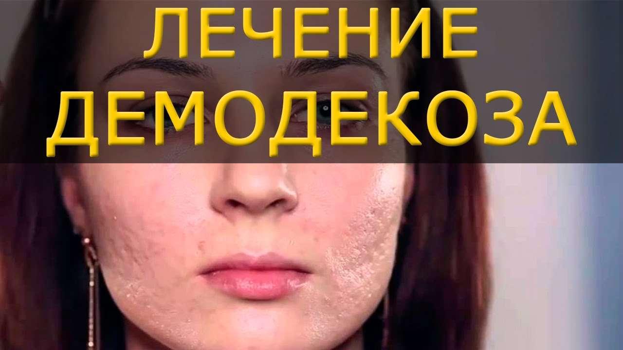 демодекоз лечение кожи лица в домашних условиях ухода термобельем Чтобы