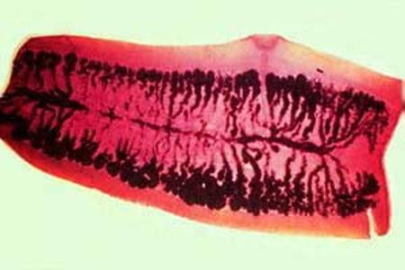 гермафродитная проглоттида розовый