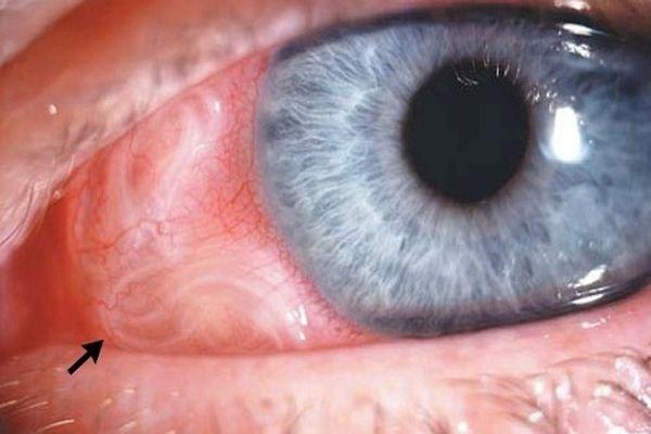 глаз глисты