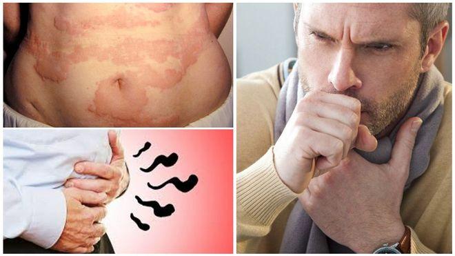 Симптомы наличия в организме паразитов