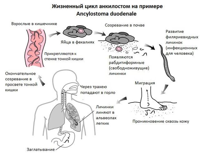 Анкилостомы
