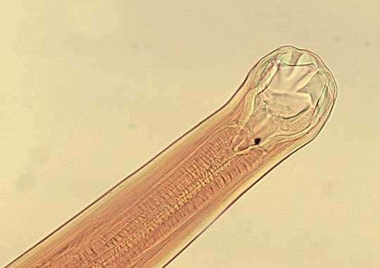 анкилостома паразит