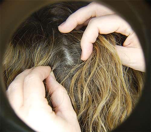 волосы и паразиты