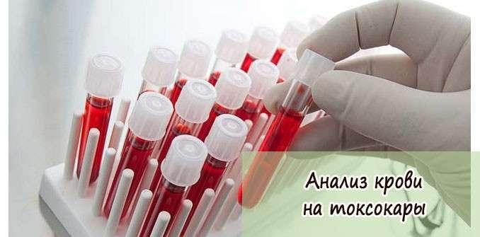 анализ на токсокароз