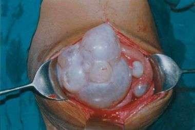 эхинококкоз в разрезе