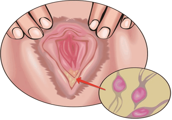 бактериальный трихомониаз
