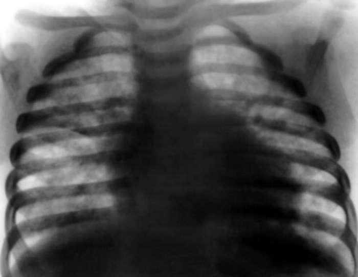 пнемоцистоз легких