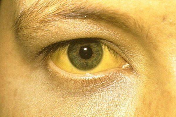 желтуха у женщины