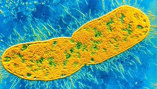 Клебсиелла кпод микроскопом