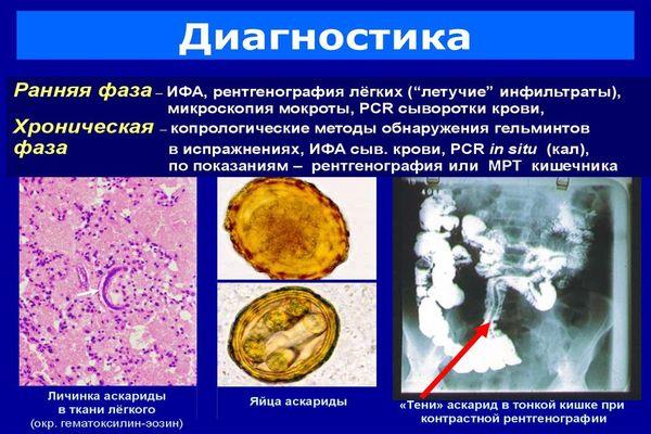 Анализ крови и кала на аскариды, его расшифровка и как правильно сдавать