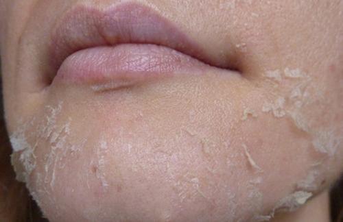 шелушиться кожа