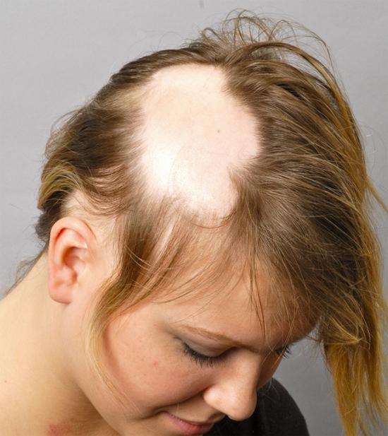 сбривание головы