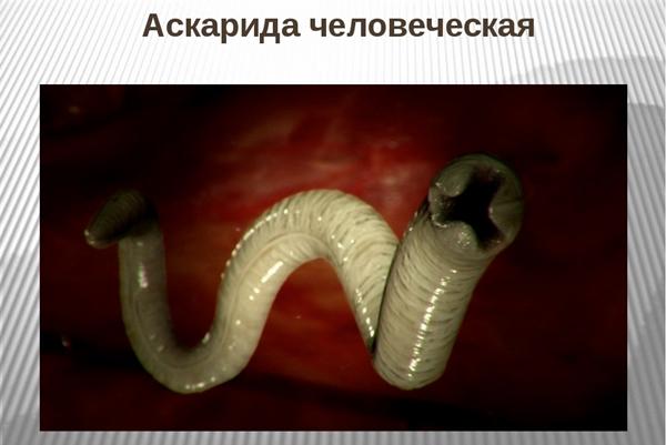 аскарида в организме человека