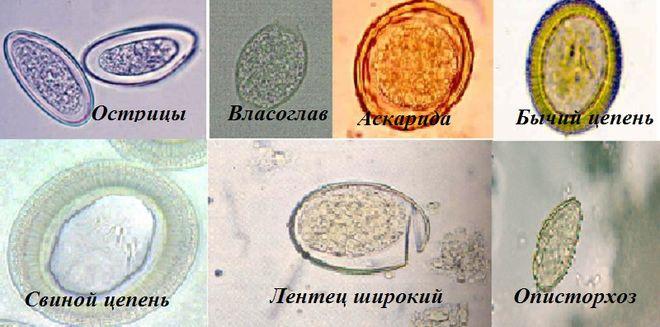 Виды глистов и их яйца